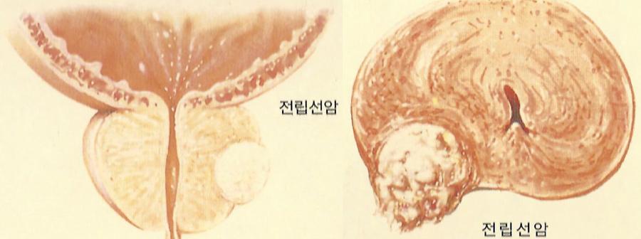 전립선암1_1.jpg