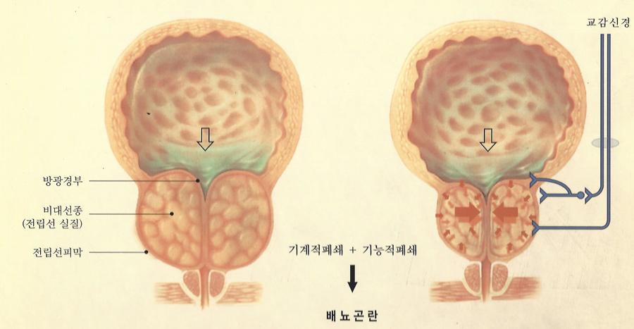 비대증배뇨장애_1.jpg
